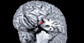 como-o-cerebro-repara-a-gagueira-thumbnail
